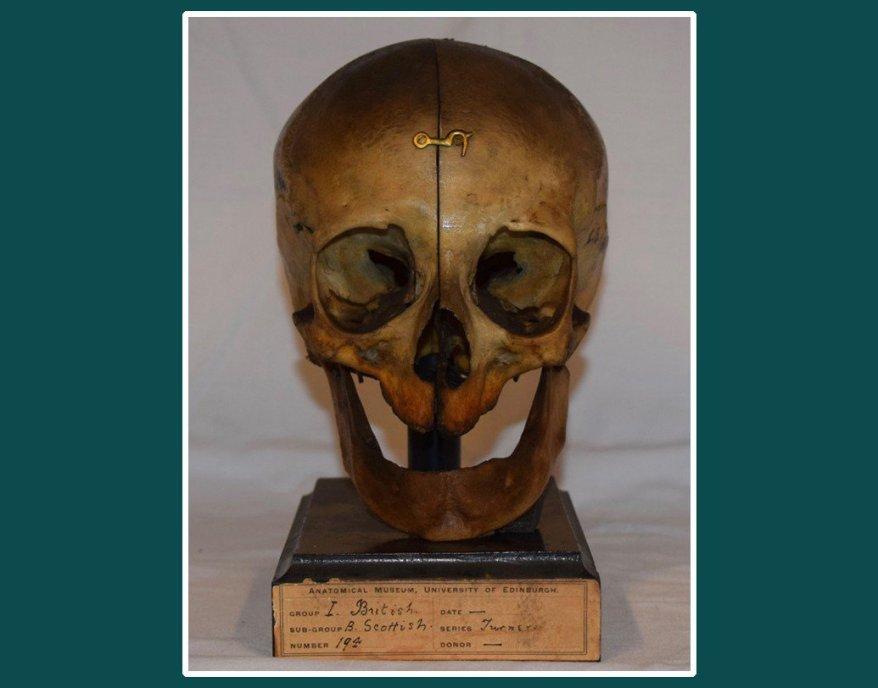 The Skull.jpg
