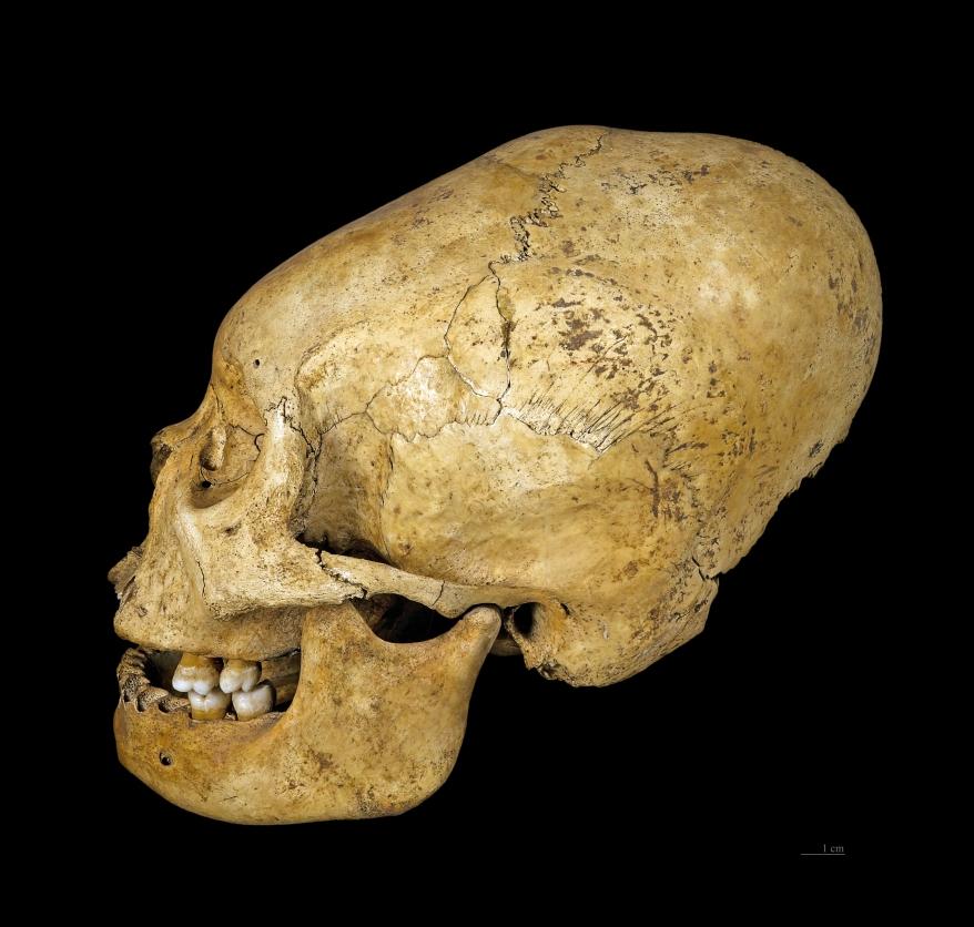 ACD Skull.jpg